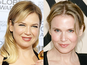 It looks like Renée Zellweger has undergone an eyelid lift
