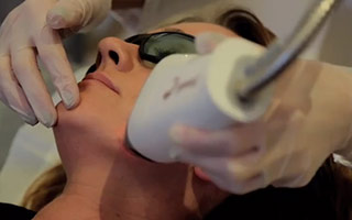 Fraxel Dual Laser treatment with Ms Angelica Kavouni