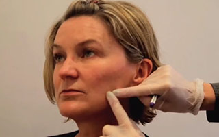 Short scar facelift procedure explained by Ms Angelica Kavouni