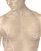 Male breast reduction surgery