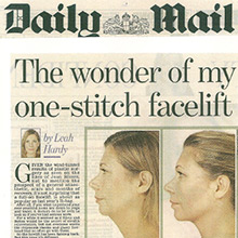 The wonder of my one stitch facelift, it's the ultimate quick fix for turkey necks